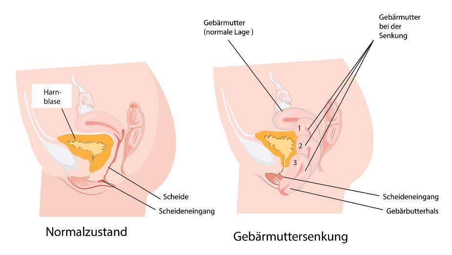 Charmant Gebärmutter Lage Zeitgenössisch - Menschliche Anatomie ...
